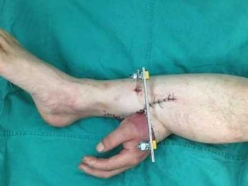 doctors-saved-mans-severed-hand-by-grafting-it-to-his-leg-309-1541143567_original1923522669.jpeg